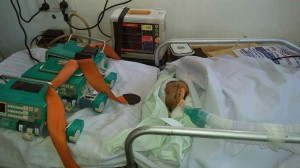 New Born Baby in ventilator