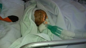 New Born Baby on Ventilator